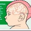 Bebês com microcefalia recebem tratamento odontológico gratuito