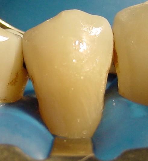 Dente restaurado... pra sempre?