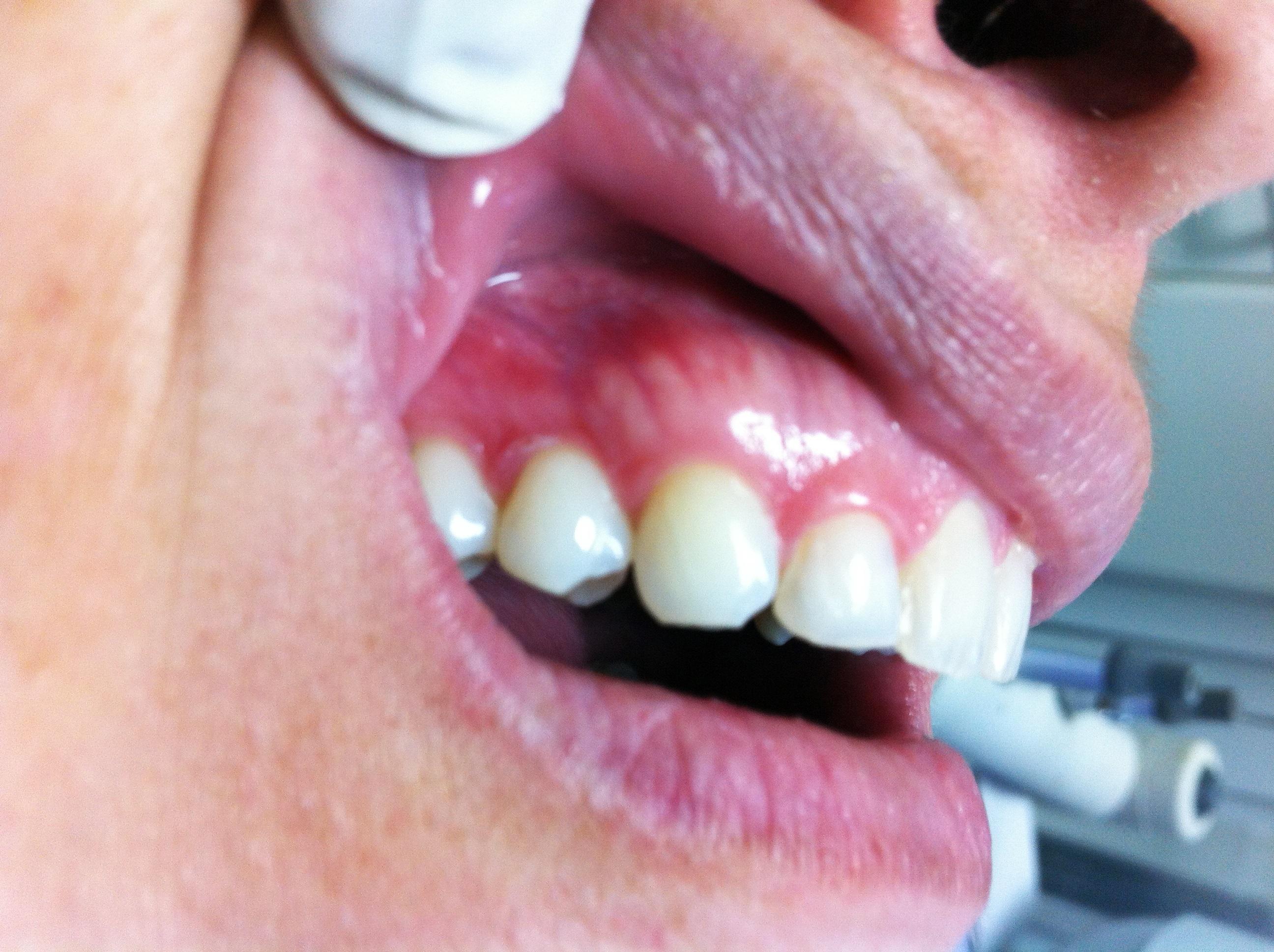 Clareamento Dental Com Fitas Branqueadoras Odontodivas