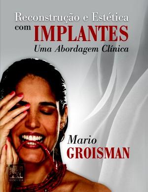 Livro: Restauracao Estética Implantes