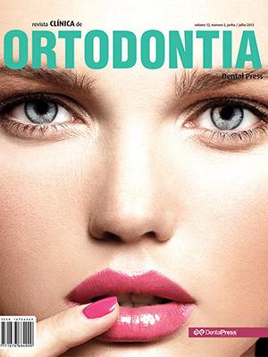 Revista Clínica de Ortodontia - Dental Press