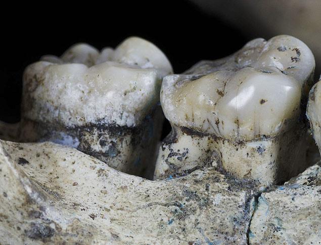 Por exemplo, um deles era um precoce usuário de palito de dentes. E era tão fã da coisa que isso afetou sua mandíbula, deixando o dano visível aos cientistas quase dois milhões de anos depois. Já outro era um senhor (ou senhora) de idade, quase banguela, e que conseguiu sobreviver muitos anos apesar da sua péssima dentição.