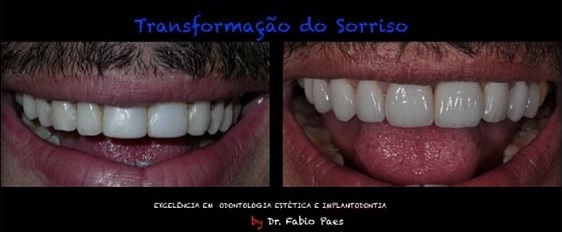 Gusttavo Lima: sorriso real