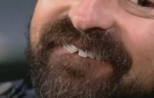 """Emilio Orciollo Netto """"serra"""" dente"""