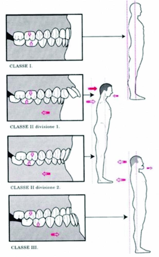 Essa imagem é famosa, é do artigo de Bricot (2004). Mostra que de acordo com a maloclusão encontraremos uma postura corporal compensatória.