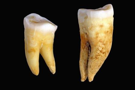 Dentes retirados de múmias