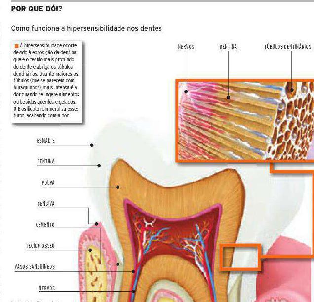 dor-de-dente-1