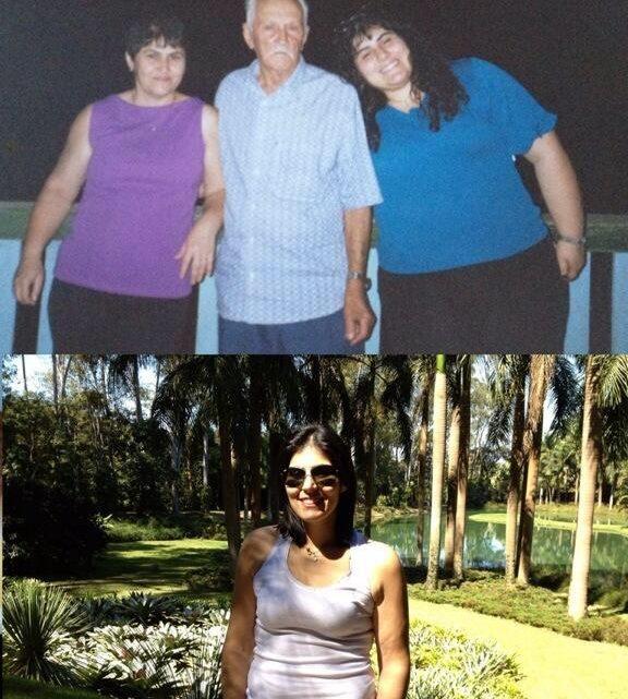 Antes e depois da bariátrica