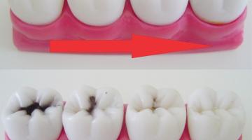 Regeneração de tecido dentário
