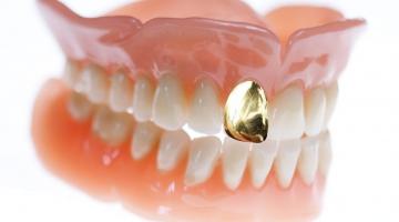 Dentadura com dente de ouro