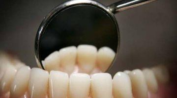 Exame no dentista
