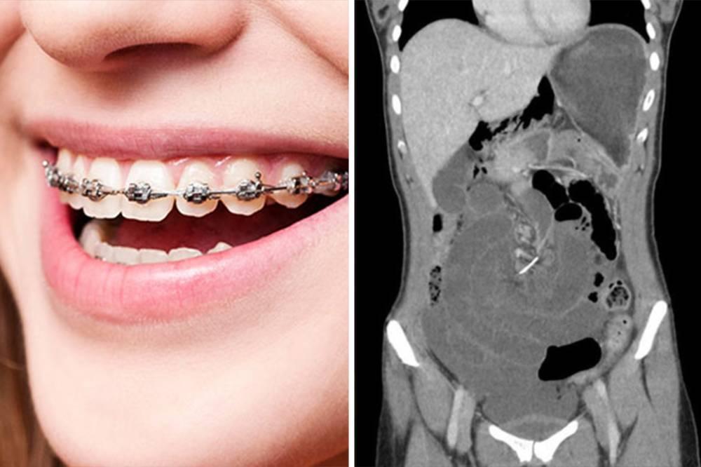 Um pedaço de fio ortodôntico perfurou o intestino da moça