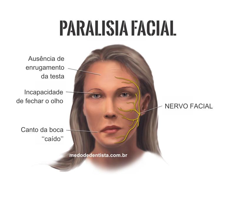 Paralisia facial